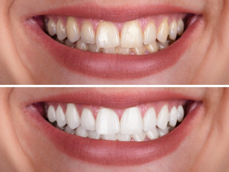Teeth whitening Simple Safe and Effective